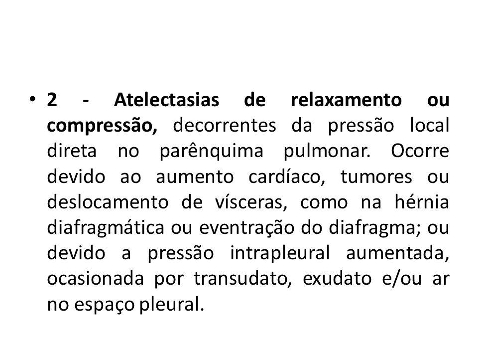 2 - Atelectasias de relaxamento ou compressão, decorrentes da pressão local direta no parênquima pulmonar. Ocorre devido ao aumento cardíaco, tumores
