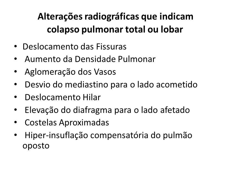 Alterações radiográficas que indicam colapso pulmonar total ou lobar Deslocamento das Fissuras Aumento da Densidade Pulmonar Aglomeração dos Vasos Des