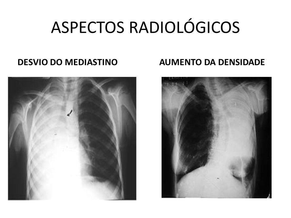 ASPECTOS RADIOLÓGICOS DESVIO DO MEDIASTINOAUMENTO DA DENSIDADE