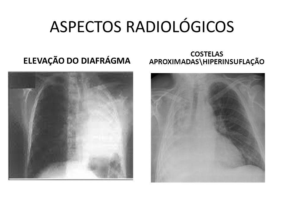 A pneumonia alveolar ou do espaço aéreo Exemplo é a pneumonia pneumocócica, é produzida por um organismo que causa um exsudado inflamatório que substitui o ar dos alvéolos, de modo que a parte afetada do pulmão não contém ar, aparecendo solidificada.