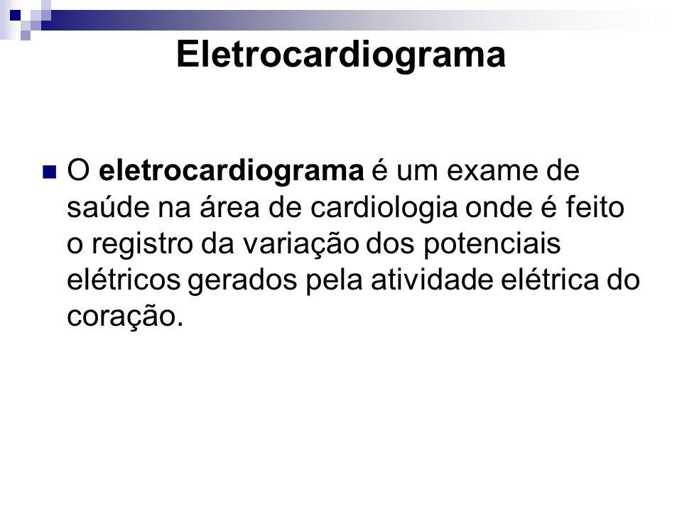 Eletrocardiograma O eletrocardiograma é um exame de saúde na área de cardiologia onde é feito o registro da variação dos potenciais elétricos gerados