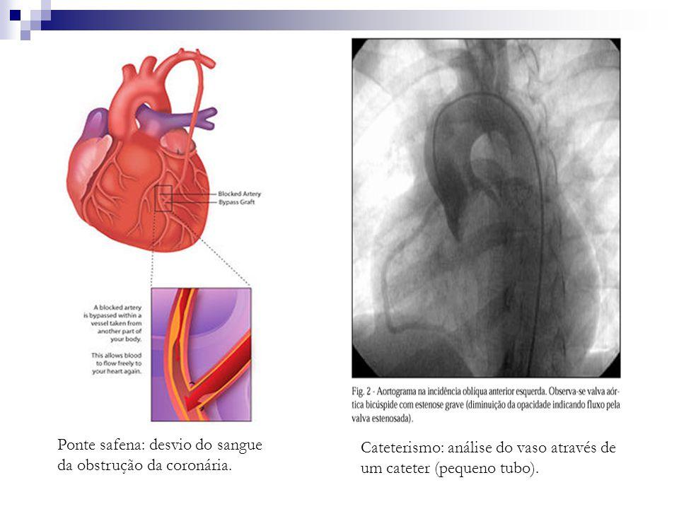 Ponte safena: desvio do sangue da obstrução da coronária. Cateterismo: análise do vaso através de um cateter (pequeno tubo).