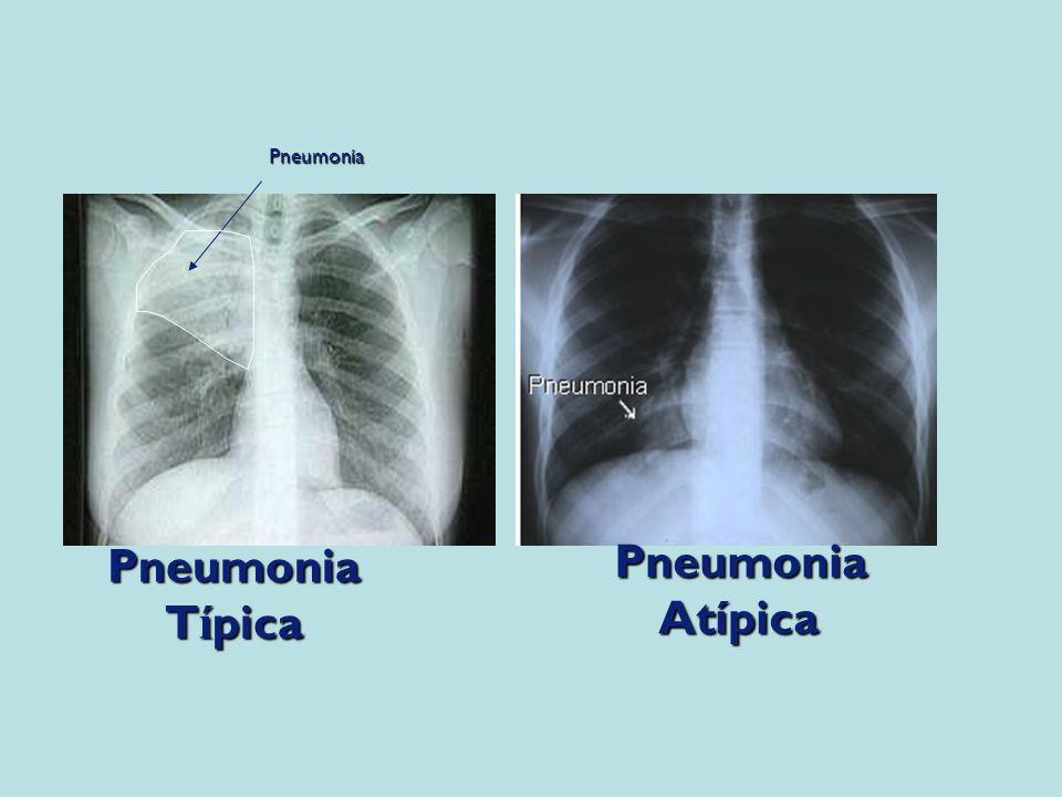 Pneumonia T í pica PneumoniaAtípicaPneumonia