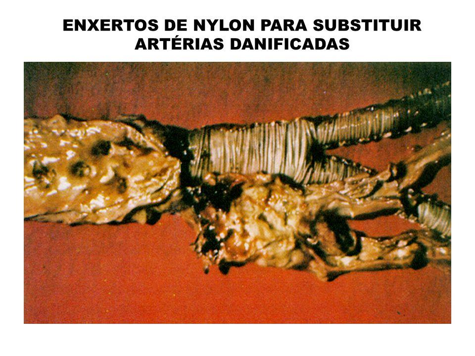 ENXERTOS DE NYLON PARA SUBSTITUIR ARTÉRIAS DANIFICADAS