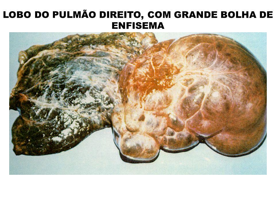 LOBO DO PULMÃO DIREITO, COM GRANDE BOLHA DE ENFISEMA