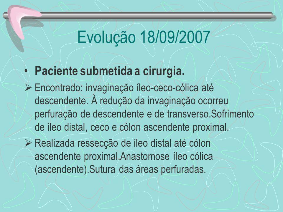 Evolução 18/09/2007 Paciente submetida a cirurgia. Encontrado: invaginação íleo-ceco-cólica até descendente. À redução da invaginação ocorreu perfuraç
