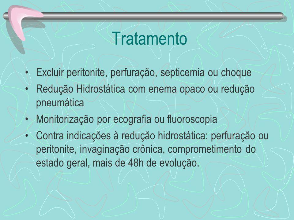 Tratamento Excluir peritonite, perfuração, septicemia ou choque Redução Hidrostática com enema opaco ou redução pneumática Monitorização por ecografia