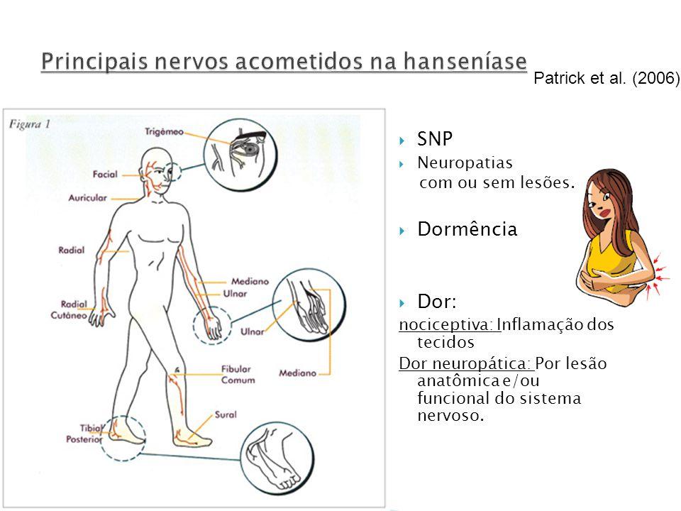 SNP Neuropatias com ou sem lesões. Dormência Dor: nociceptiva: Inflamação dos tecidos Dor neuropática: Por lesão anatômica e/ou funcional do sistema n