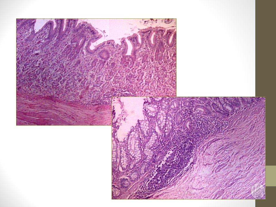 4- Estômago Tubo dilatado saculiforme, com ação enzimática e hidrolítica sobre o alimento - quimo Equinos, ruminantes e suínos - Pré-estômago não glandular e um estômago glandular Ruminantes – pré estômago é dividido em rúmen, retículo e omaso e o estômago glandular corresponde ao abomaso Cães e gatos – apenas estômago glandular