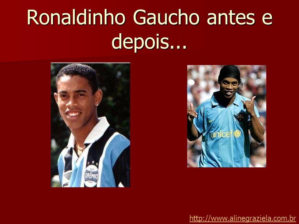 Ronaldinho Gaucho antes e depois... http://www.alinegraziela.com.br