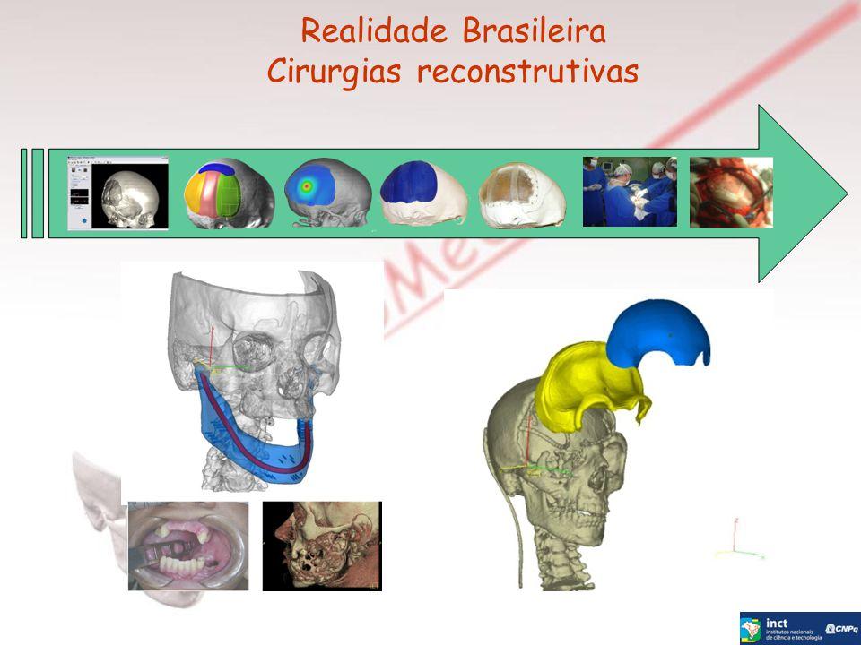 Realidade Brasileira Cirurgias reconstrutivas