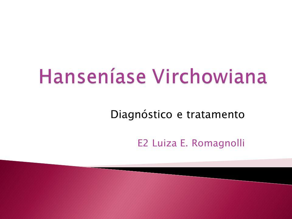 Diagnóstico e tratamento E2 Luiza E. Romagnolli
