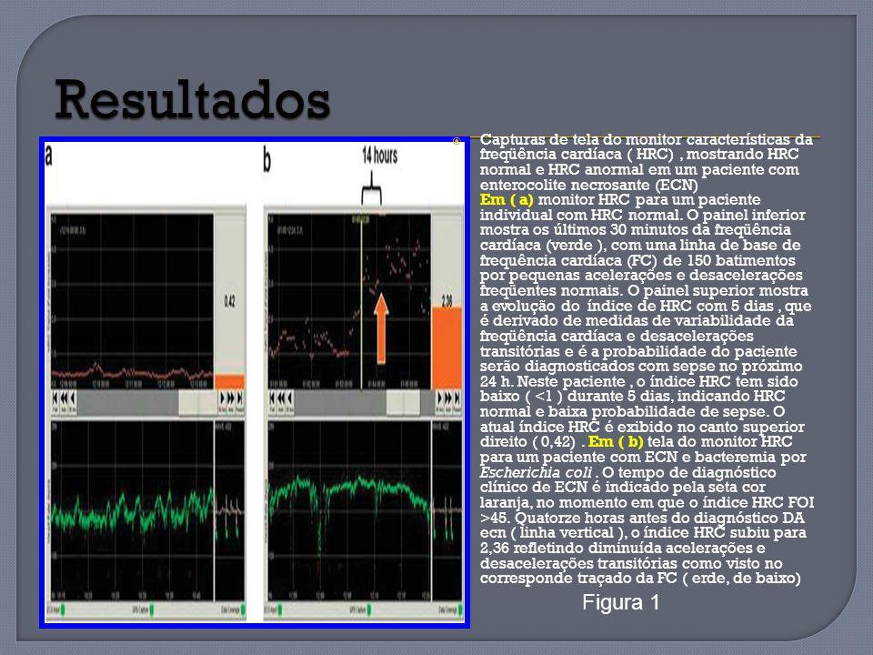 Capturas de tela do monitor características da freqüência cardíaca ( HRC), mostrando HRC normal e HRC anormal em um paciente com enterocolite necrosan
