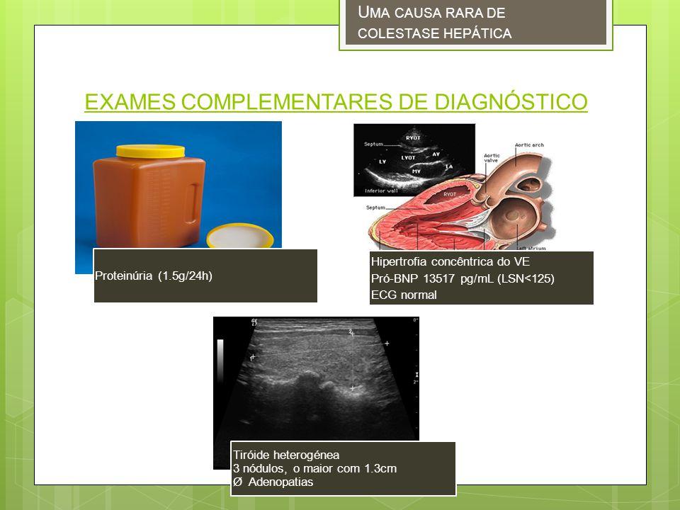 EXAMES COMPLEMENTARES DE DIAGNÓSTICO U MA CAUSA RARA DE COLESTASE HEPÁTICA Proteinúria (1.5g/24h) Hipertrofia concêntrica do VE Pró-BNP 13517 pg/mL (LSN<125) ECG normal Tiróide heterogénea 3 nódulos, o maior com 1.3cm Ø Adenopatias