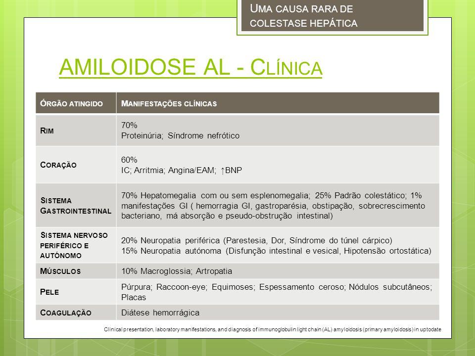 AMILOIDOSE AL - C LÍNICA U MA CAUSA RARA DE COLESTASE HEPÁTICA Ó RGÃO ATINGIDO M ANIFESTAÇÕES CLÍNICAS R IM 70% Proteinúria; Síndrome nefrótico C ORAÇÃO 60% IC; Arritmia; Angina/EAM; BNP S ISTEMA G ASTROINTESTINAL 70% Hepatomegalia com ou sem esplenomegalia; 25% Padrão colestático; 1% manifestações GI ( hemorragia GI, gastroparésia, obstipação, sobrecrescimento bacteriano, má absorção e pseudo-obstrução intestinal) S ISTEMA NERVOSO PERIFÉRICO E AUTÓNOMO 20% Neuropatia periférica (Parestesia, Dor, Síndrome do túnel cárpico) 15% Neuropatia autónoma (Disfunção intestinal e vesical, Hipotensão ortostática) M ÚSCULOS 10% Macroglossia; Artropatia P ELE Púrpura; Raccoon-eye; Equimoses; Espessamento ceroso; Nódulos subcutâneos; Placas C OAGULAÇÃO Diátese hemorrágica Clinical presentation, laboratory manifestations, and diagnosis of immunoglobulin light chain (AL) amyloidosis (primary amyloidosis) in uptodate