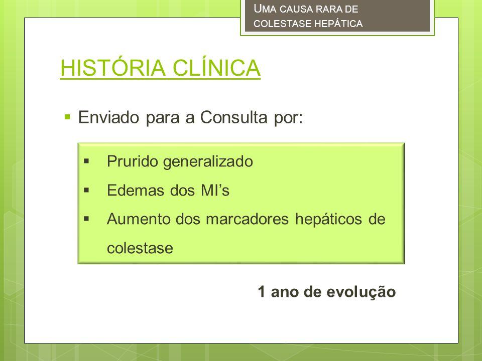 HISTÓRIA CLÍNICA Enviado para a Consulta por: Prurido generalizado Edemas dos MIs Aumento dos marcadores hepáticos de colestase 1 ano de evolução U MA CAUSA RARA DE COLESTASE HEPÁTICA