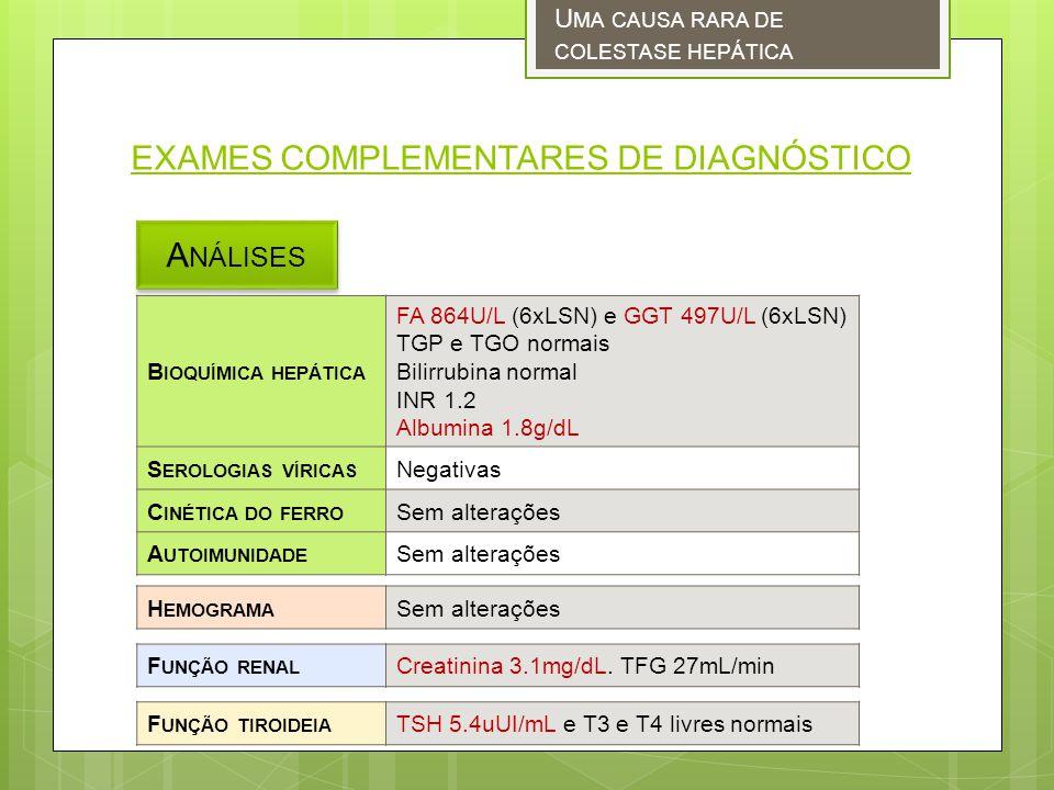EXAMES COMPLEMENTARES DE DIAGNÓSTICO A NÁLISES U MA CAUSA RARA DE COLESTASE HEPÁTICA B IOQUÍMICA HEPÁTICA FA 864U/L (6xLSN) e GGT 497U/L (6xLSN) TGP e TGO normais Bilirrubina normal INR 1.2 Albumina 1.8g/dL S EROLOGIAS VÍRICAS Negativas C INÉTICA DO FERRO Sem alterações A UTOIMUNIDADE Sem alterações H EMOGRAMA Sem alterações F UNÇÃO RENAL Creatinina 3.1mg/dL.