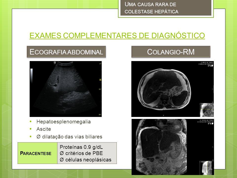 EXAMES COMPLEMENTARES DE DIAGNÓSTICO Hepatoesplenomegalia Ascite Ø dilatação das vias biliares E COGRAFIA ABDOMINAL U MA CAUSA RARA DE COLESTASE HEPÁTICA C OLANGIO -RM P ARACENTESE Proteínas 0.9 g/dL Ø critérios de PBE Ø células neoplásicas