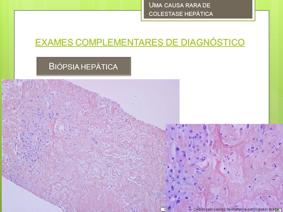 EXAMES COMPLEMENTARES DE DIAGNÓSTICO B IÓPSIA HEPÁTICA U MA CAUSA RARA DE COLESTASE HEPÁTICA Cedido pelo Serviço de Anatomia-patológica H.