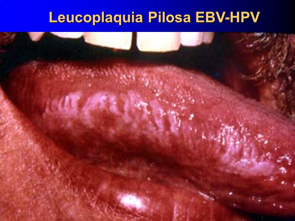 10 Leucoplaquia Pilosa EBV-HPV