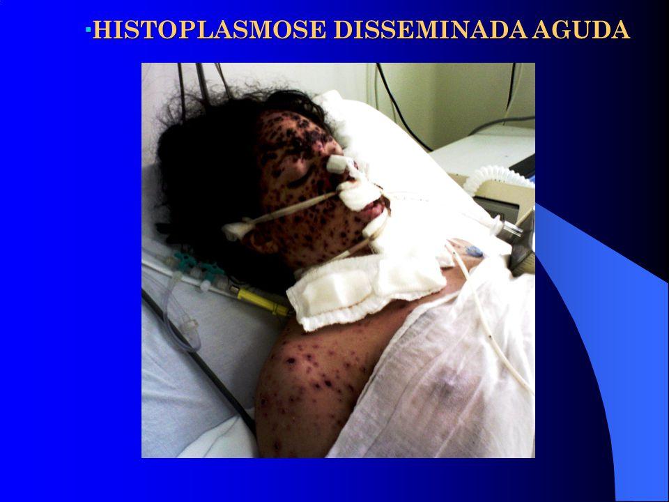 HISTOPLASMOSE DISSEMINADA AGUDA HISTOPLASMOSE DISSEMINADA AGUDA