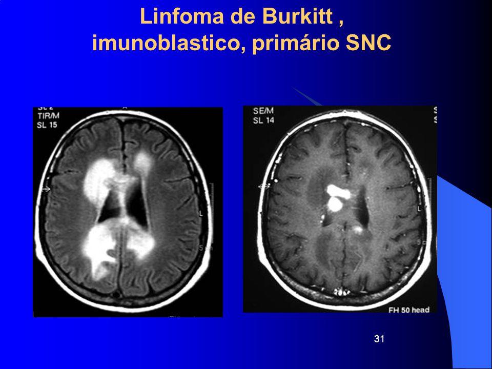 31 Linfoma de Burkitt, imunoblastico, primário SNC