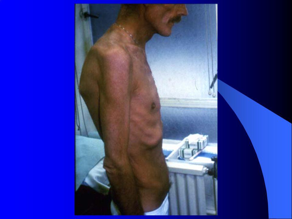 Sarcoma de Kaposi Linfoma de Burkitt, imunoblastico, primário SNC Infecção por Mycobacterium avium, dissem.