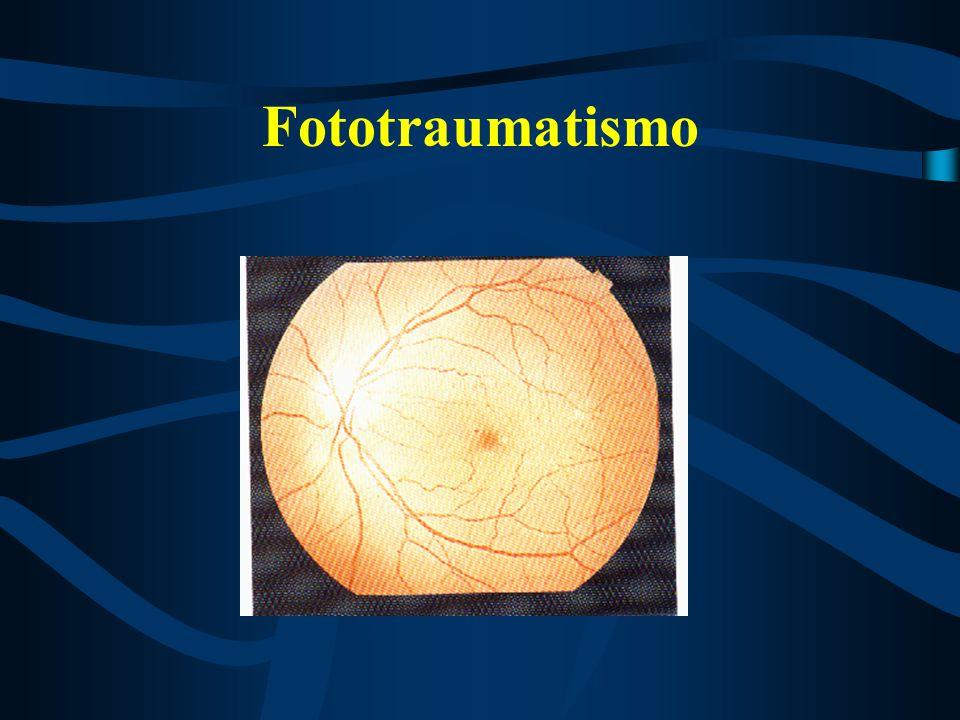 Traumas Oculares É toda agressão no globo ocular e tecidos anexos.