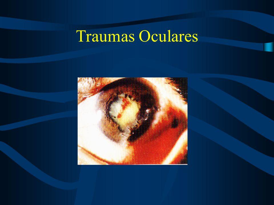 Traumas oculares