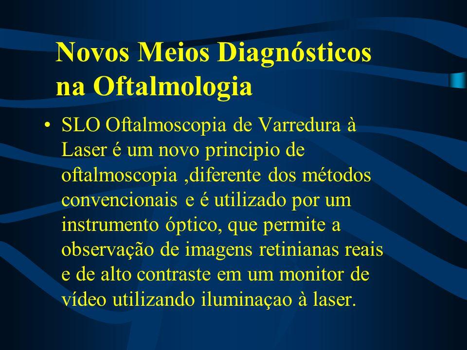 SLO Oftalmoscopia de Varredura à Laser é um novo principio de oftalmoscopia,diferente dos métodos convencionais e é utilizado por um instrumento óptic