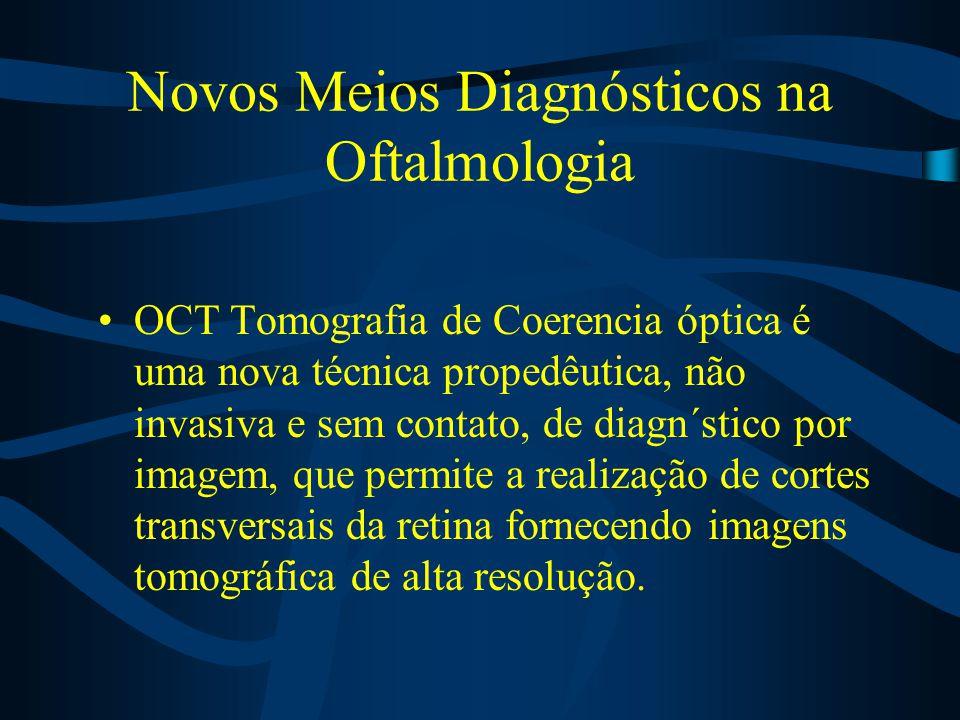 Novos Meios Diagnósticos na Oftalmologia OCT Tomografia de Coerencia óptica é uma nova técnica propedêutica, não invasiva e sem contato, de diagn´stico por imagem, que permite a realização de cortes transversais da retina fornecendo imagens tomográfica de alta resolução.