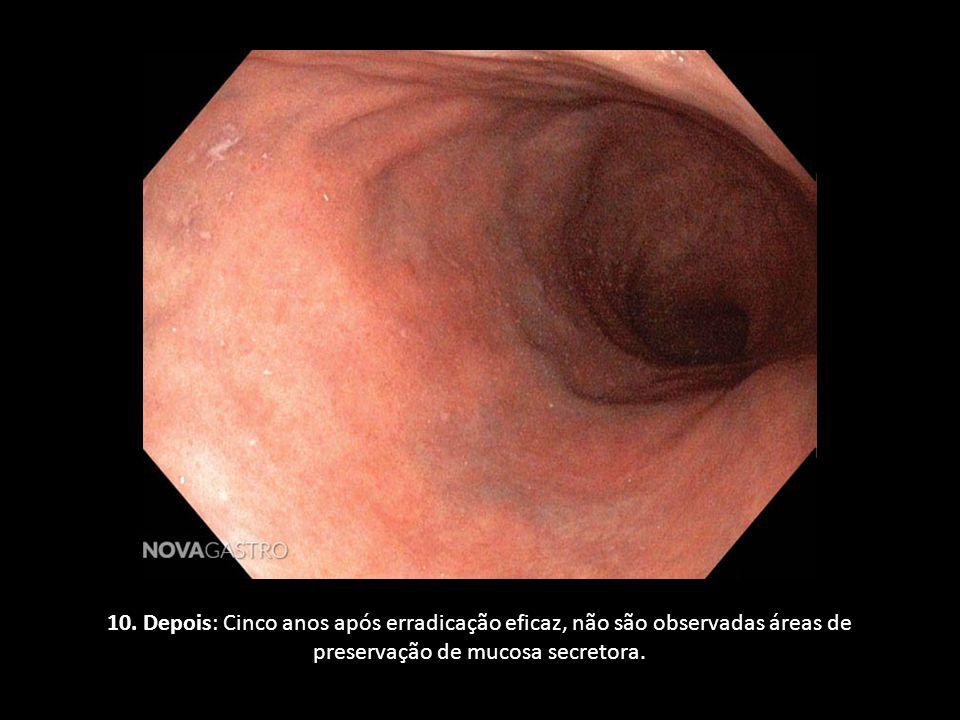 10. Depois: Cinco anos após erradicação eficaz, não são observadas áreas de preservação de mucosa secretora.