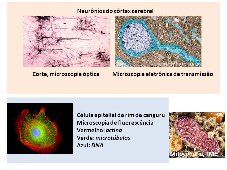 Neurônios do córtex cerebral Corte, microscopia óptica Célula epitelial de rim de canguru Microscopia de fluorescência Vermelho: actina Verde: microtú