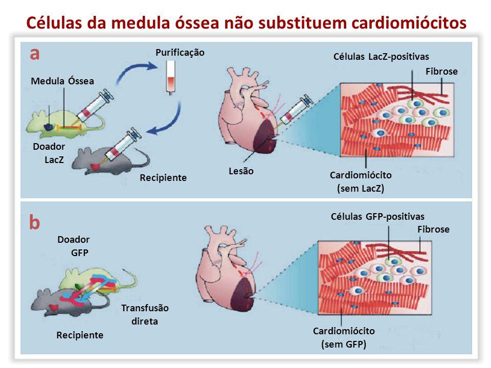 Células da medula óssea não substituem cardiomiócitos Medula Óssea a Recipiente Doador LacZ Lesão Purificação Células LacZ-positivas Fibrose Cardiomió