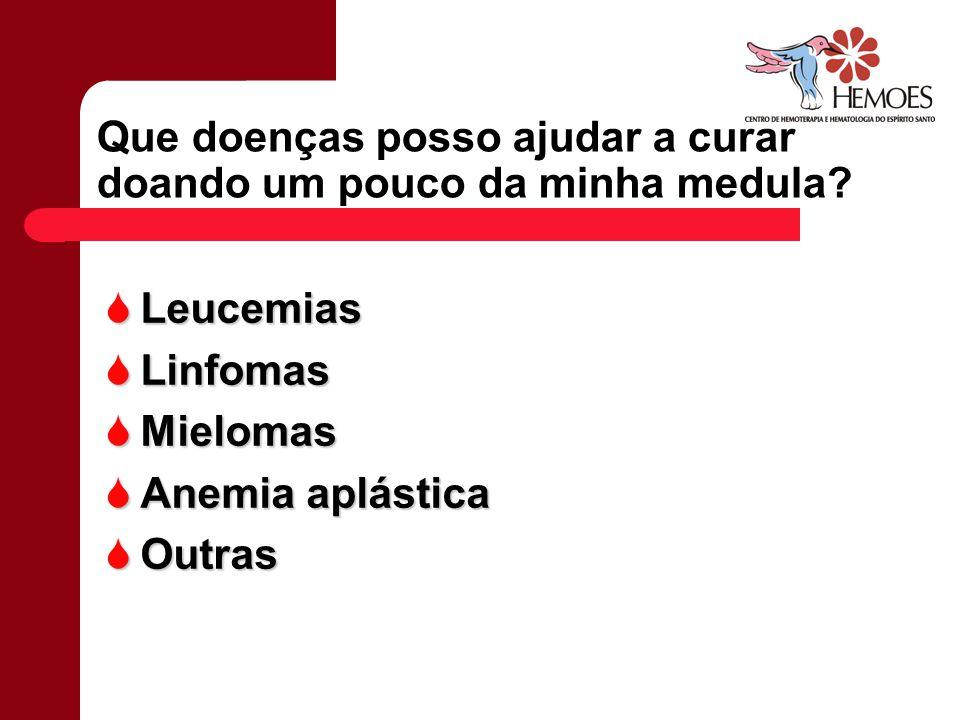Que doenças posso ajudar a curar doando um pouco da minha medula? Leucemias Leucemias Linfomas Linfomas Mielomas Mielomas Anemia aplástica Anemia aplá