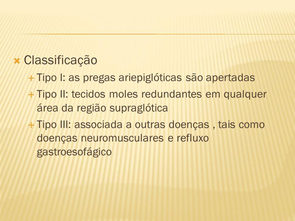 Classificação Tipo I: as pregas ariepiglóticas são apertadas Tipo II: tecidos moles redundantes em qualquer área da região supraglótica Tipo III: asso