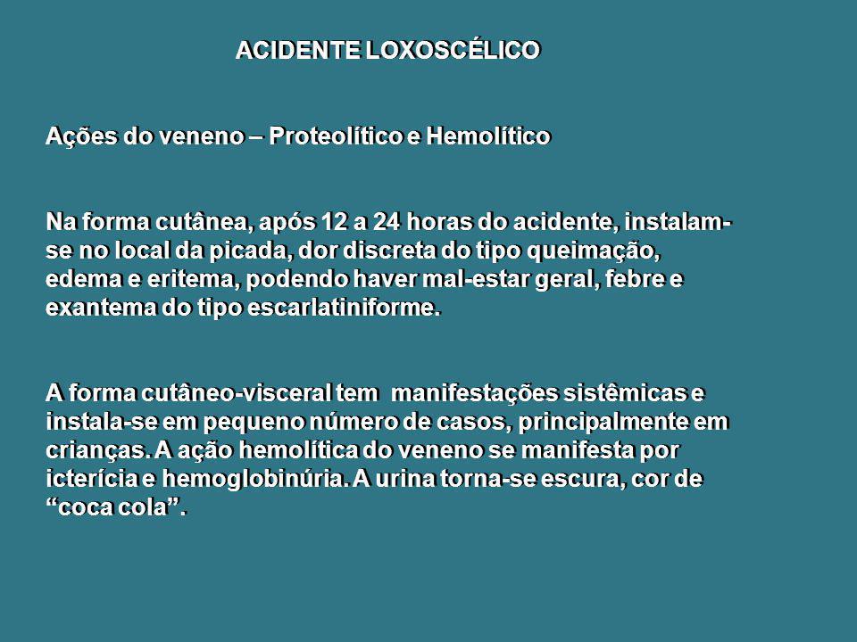 ACIDENTE LOXOSCÉLICO Ações do veneno – Proteolítico e Hemolítico Na forma cutânea, após 12 a 24 horas do acidente, instalam- se no local da picada, do