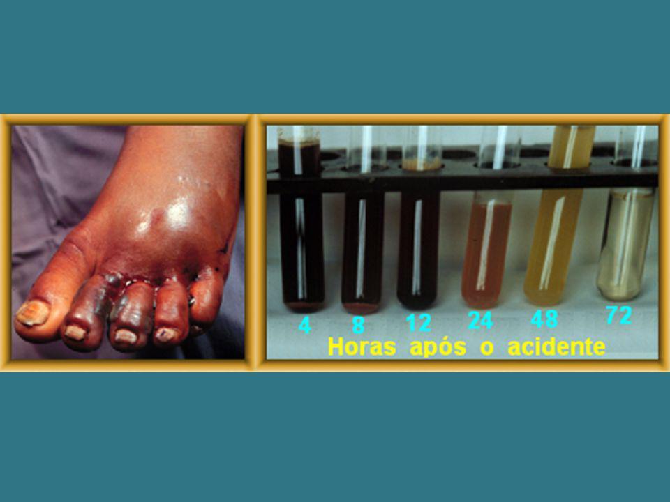 TRATAMENTO O tratamento específico do loxoscelismo é feito à base de soro anti- loxoscélico.