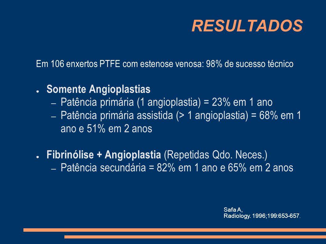 RESULTADOS Em 106 enxertos PTFE com estenose venosa: 98% de sucesso técnico Somente Angioplastias – Patência primária (1 angioplastia) = 23% em 1 ano – Patência primária assistida (> 1 angioplastia) = 68% em 1 ano e 51% em 2 anos Fibrinólise + Angioplastia (Repetidas Qdo.