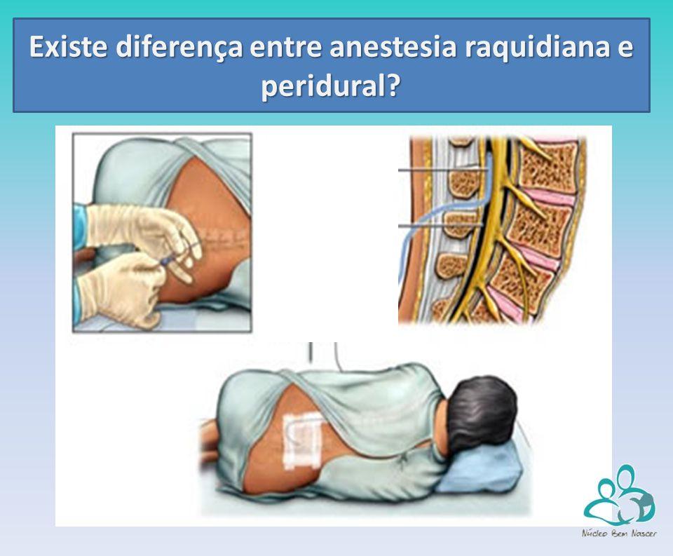 Existe diferença entre anestesia raquidiana e peridural?