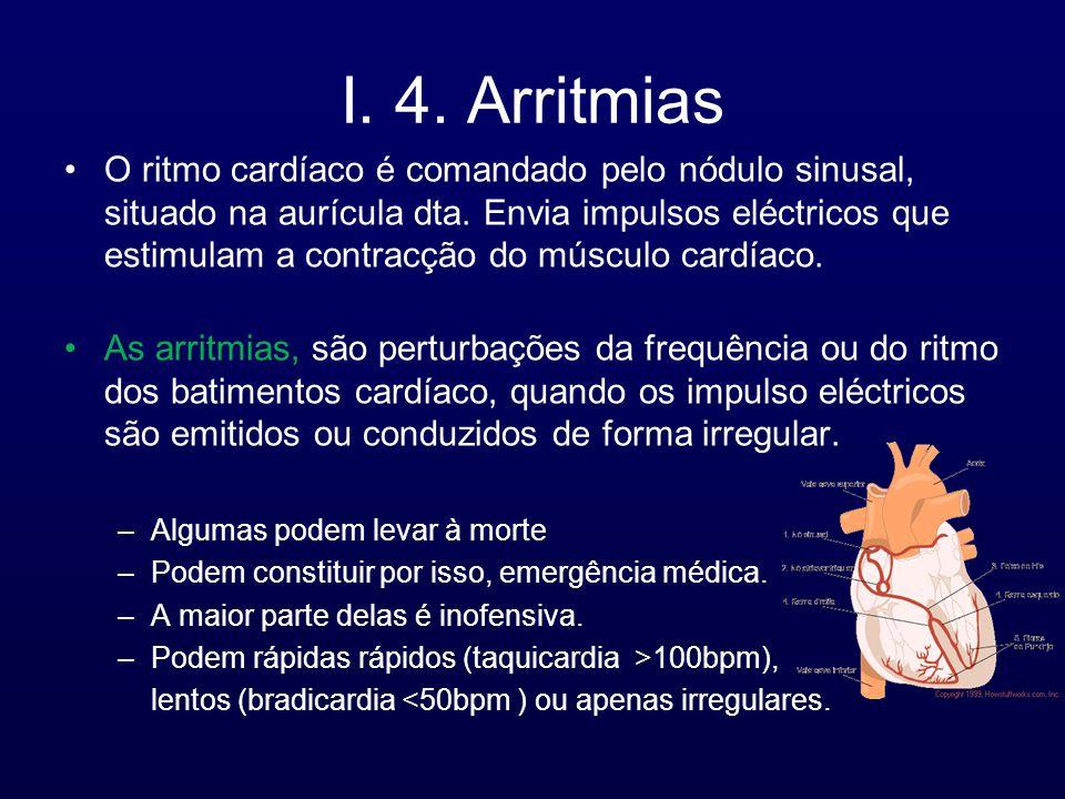 I. 4. Arritmias O ritmo cardíaco é comandado pelo nódulo sinusal, situado na aurícula dta. Envia impulsos eléctricos que estimulam a contracção do mús
