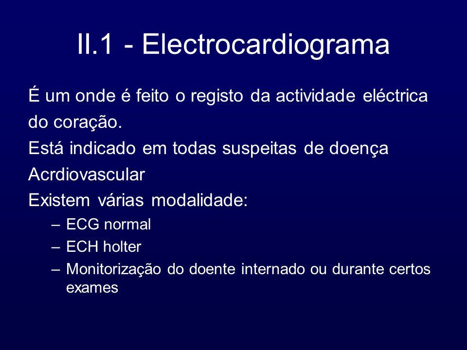 II.1 - Electrocardiograma É um onde é feito o registo da actividade eléctrica do coração. Está indicado em todas suspeitas de doença Acrdiovascular Ex