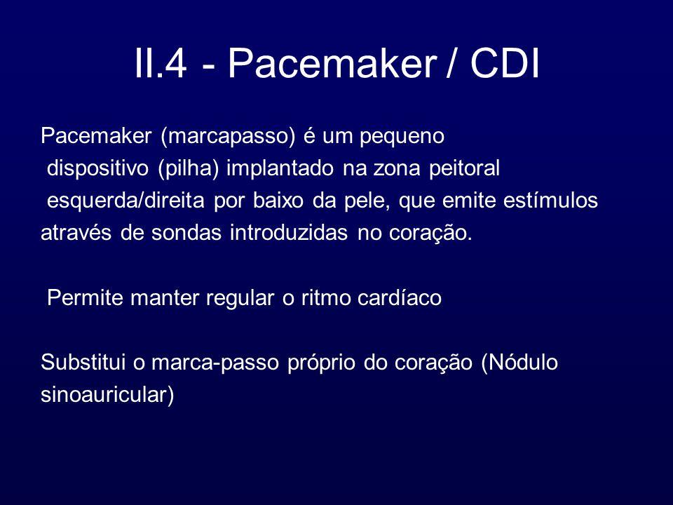 II.4 - Pacemaker / CDI Pacemaker (marcapasso) é um pequeno dispositivo (pilha) implantado na zona peitoral esquerda/direita por baixo da pele, que emite estímulos através de sondas introduzidas no coração.
