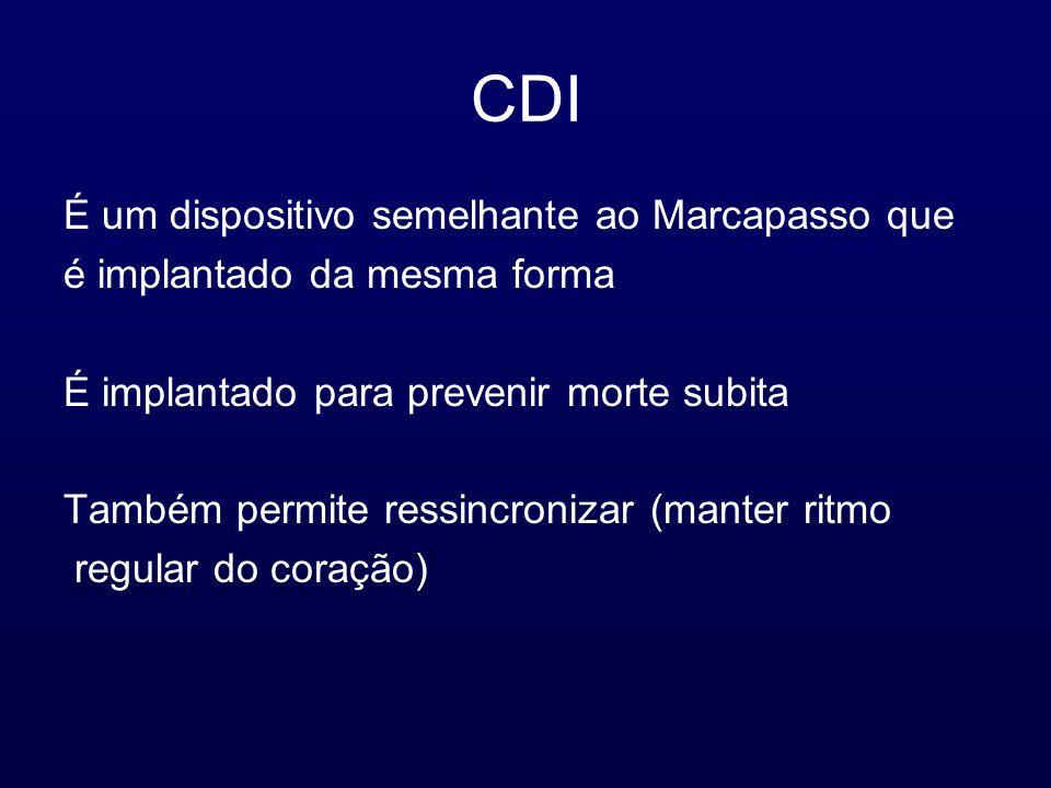 CDI É um dispositivo semelhante ao Marcapasso que é implantado da mesma forma É implantado para prevenir morte subita Também permite ressincronizar (manter ritmo regular do coração)