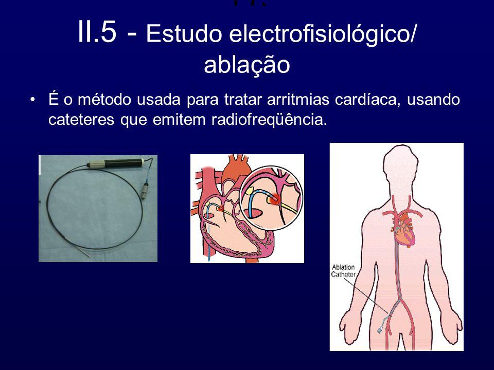 11. II.5 - Estudo electrofisiológico/ ablação É o método usada para tratar arritmias cardíaca, usando cateteres que emitem radiofreqüência.