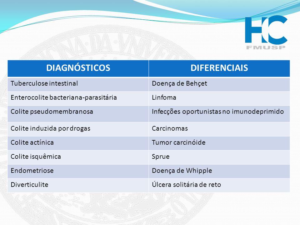 DIAGNÓSTICOSDIFERENCIAIS Tuberculose intestinalDoença de Behçet Enterocolite bacteriana-parasitáriaLinfoma Colite pseudomembranosaInfecções oportunist