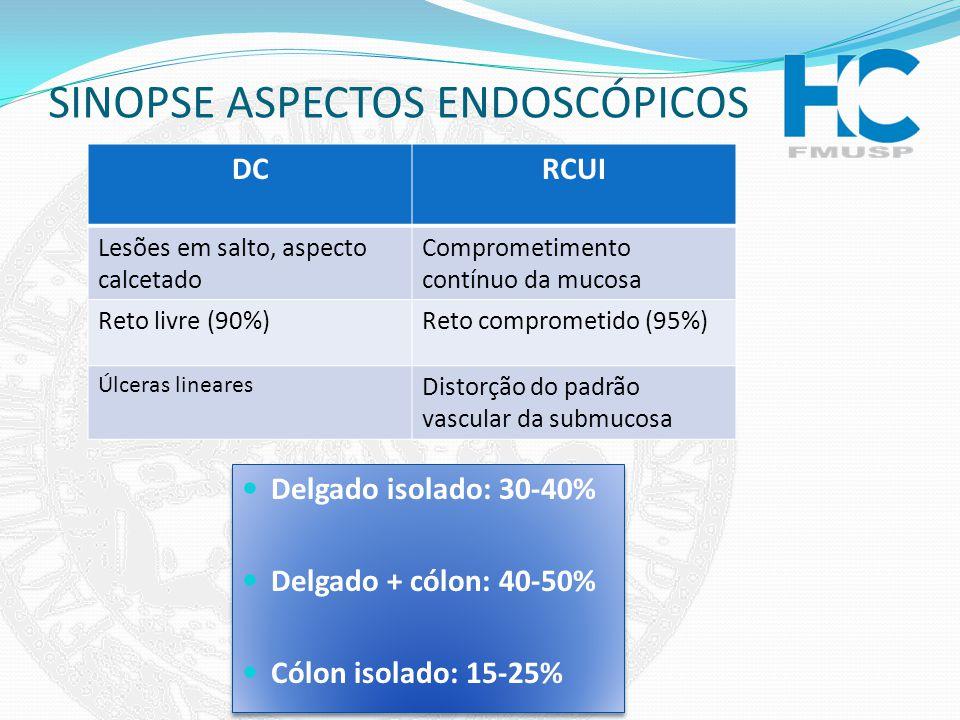 SINOPSE ASPECTOS ENDOSCÓPICOS DCRCUI Lesões em salto, aspecto calcetado Comprometimento contínuo da mucosa Reto livre (90%)Reto comprometido (95%) Úlc