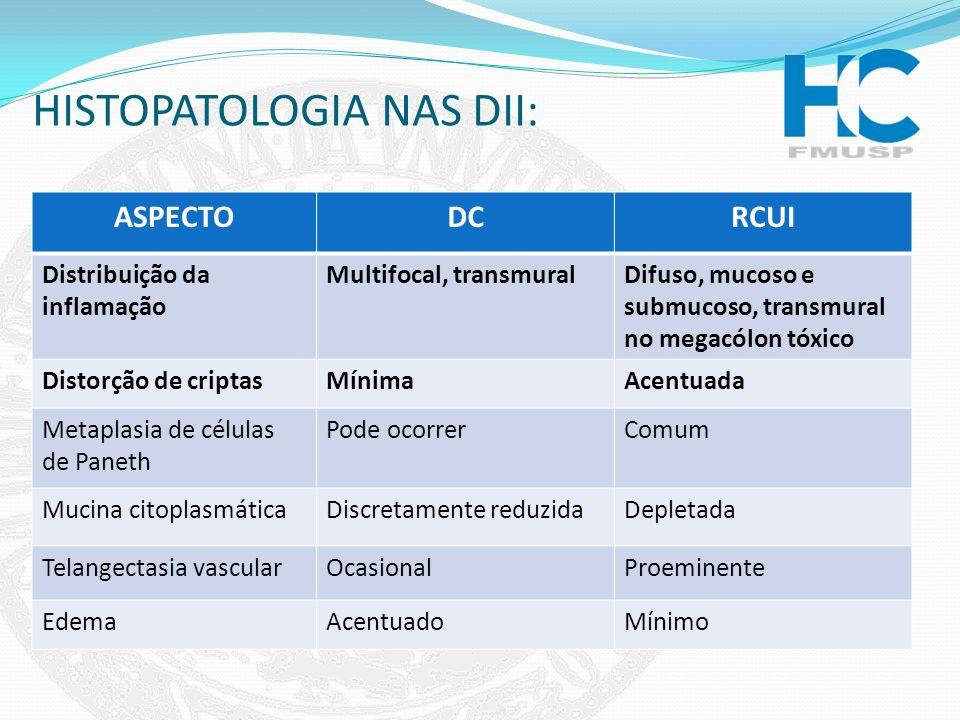 HISTOPATOLOGIA NAS DII: ASPECTODCRCUI Distribuição da inflamação Multifocal, transmuralDifuso, mucoso e submucoso, transmural no megacólon tóxico Dist