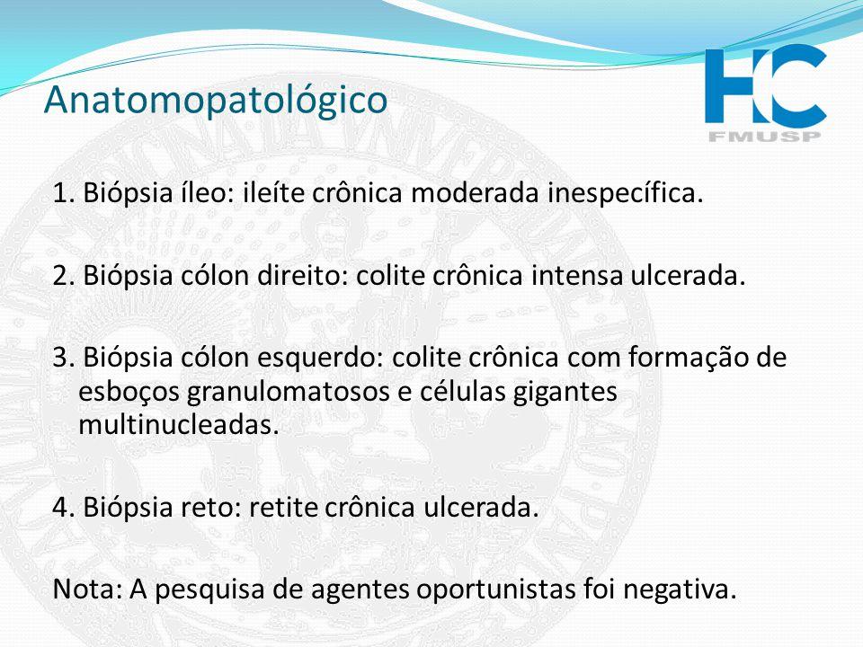 Anatomopatológico 1. Biópsia íleo: ileíte crônica moderada inespecífica. 2. Biópsia cólon direito: colite crônica intensa ulcerada. 3. Biópsia cólon e