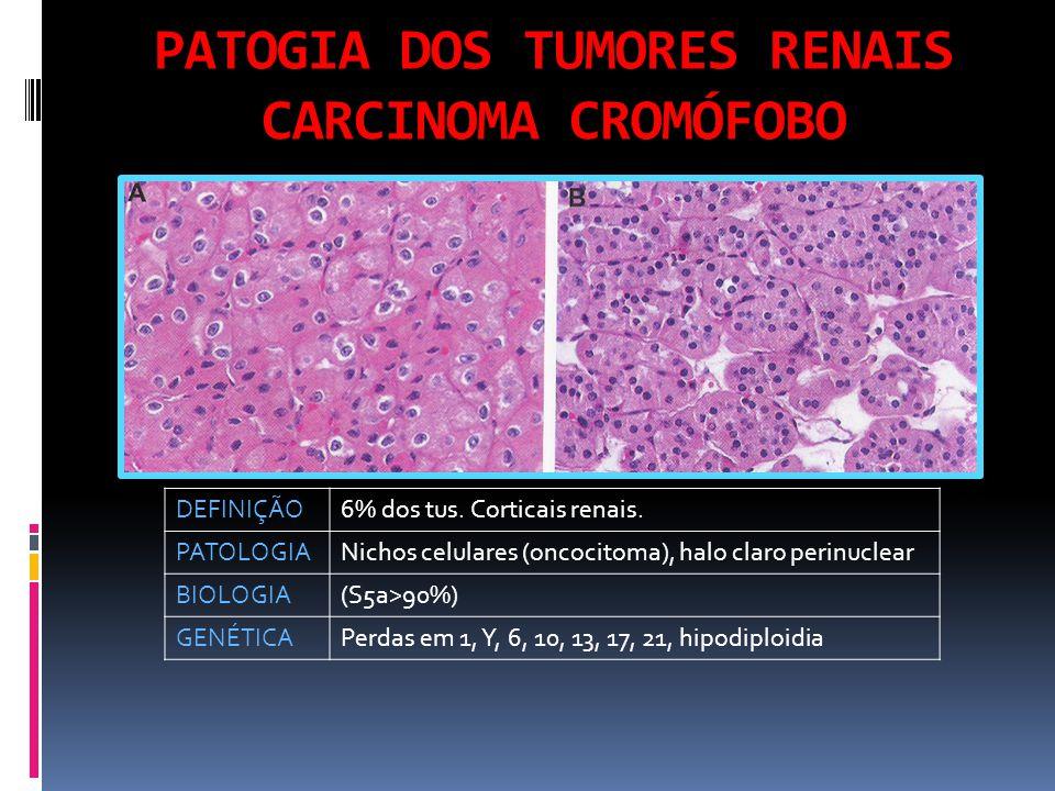 PATOGIA DOS TUMORES RENAIS CARCINOMA CROMÓFOBO DEFINIÇÃO6% dos tus.
